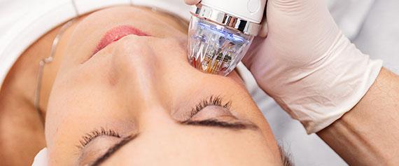lasery i urządzenia medyczne